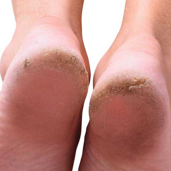 Arnica for Cracked Heels